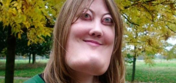 Rosto de mulher é considerado quatro ou cinco vezes maior que o tamanho de um rosto comum.