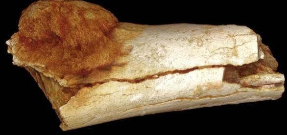 1.7 million-year-old cancer found, the oldest yet   Colorado ... - gazette.com