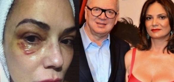 Luiza Brunet e Bilionário divergem sobre agressão
