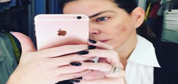 Gisele Fraga publica foto de agressão