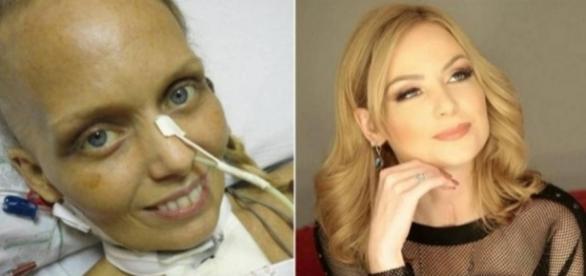 Bianca Toledo ficou conhecida por luta contra o câncer