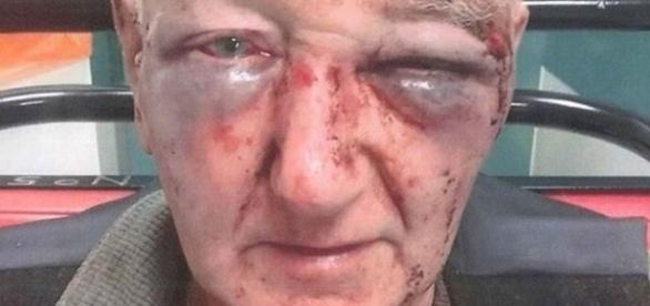 O idoso foi agredido na Inglaterra