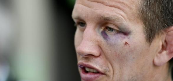 Atleta belga leva soco no rosto de bandido