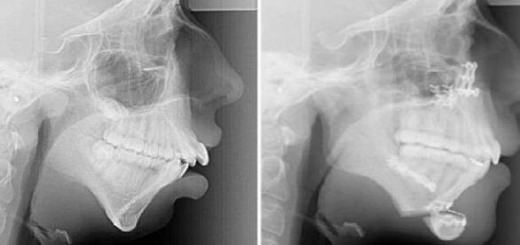 A britânica Ellie Jones sofreu uma cirurgia aos 16 anos para corrigir a malformação dos ossos de sua mandíbula.