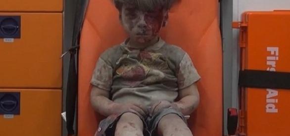 A imagem da criança ensanguentada vem chocando o mundo