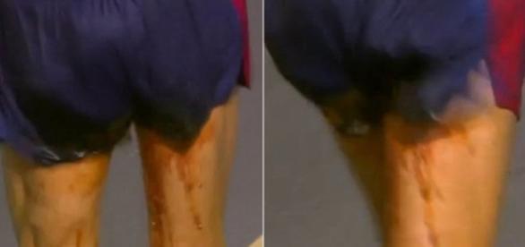 Atleta francês tem dor de barriga durante a prova