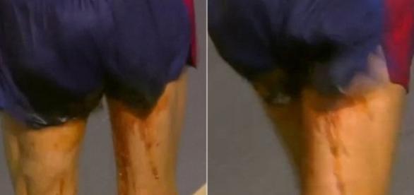 """Com dor de barriga, francês da marcha atlética """"borra"""" as calças, durante a prova"""