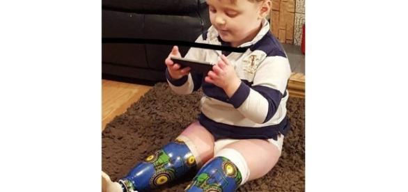 Menino de 3 anos teve pernas e dedos amputados por erro médico.
