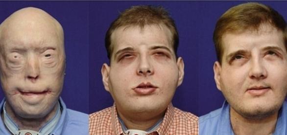 """Patrick Hardison, 42 ani, trăiește """"din nou normal"""" la un an de la transplantul de față suferit - Foto: NYU Langone Medical Center"""