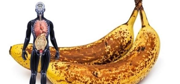Bananas podem ajudar a ter uma vida mais saudável.