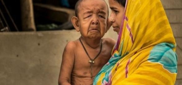 Benjamín Button existe: tiene cuatro años y luce como un anciano ... - diariohuarpe.com