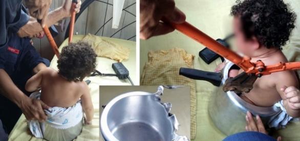 Acre: Criança usa panela de pressão como brinquedo e fica presa ... - http://mundoconectado.net/noticias/bebe-fica-presa-em-panela-de-pressao/