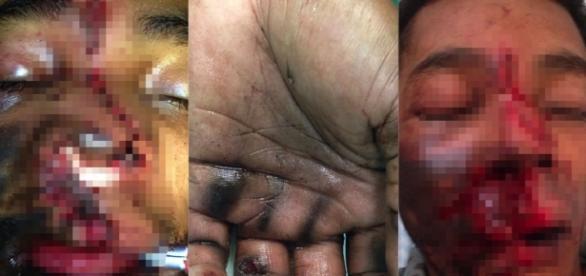 José Vânio da Silva sofreu ferimentos graves mais passa bem.