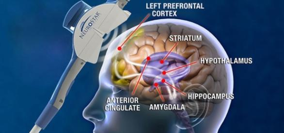 The human brain. Photo creative commons sourced via Blasting News library