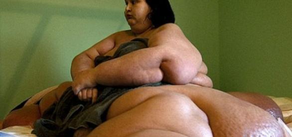 Mulher mais gorda do mundo perde 395 quilos - areademulher.com