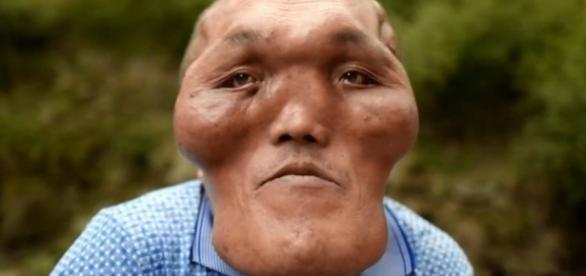 Xia Yuanhai sofre com a doença conhecida como hiperplasia facial (Crédito: YouTube/ PatrynWorldLatestNew)