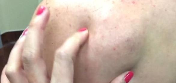 Imagem de pedaço de gordura em costas de paciente