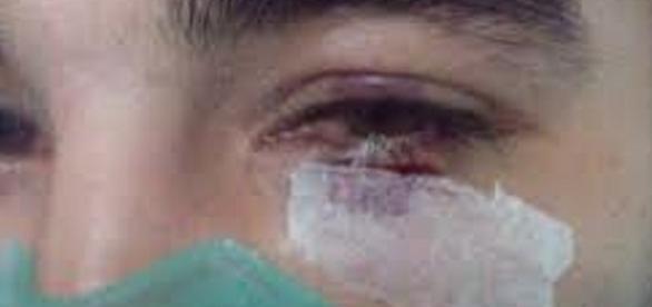 O paciente levou um soco no rosto