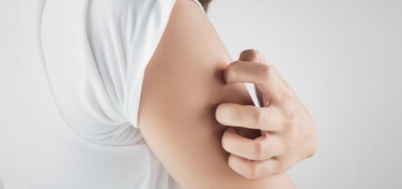 Allergia al nichel sistemica (SNAS), la dieta a basso contenuto di nichel migliora i sintomi