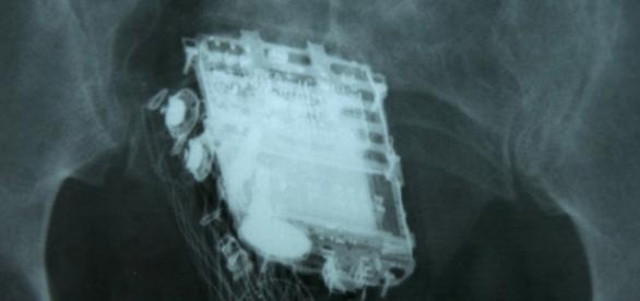 Dois presos engolem sete celulares