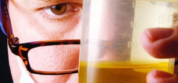 INCRÍVEL, doença que causa mortes e urina escura chega ao Ceará e deixa cearenses em alerta.