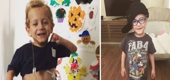Na imagem o menino que sofre pela síndrome do intestino curto.