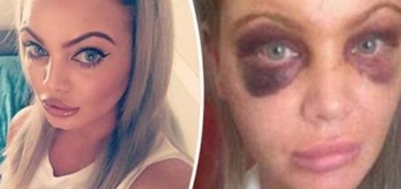 Agressora acabou caindo e ficando com vários hematomas no rosto.
