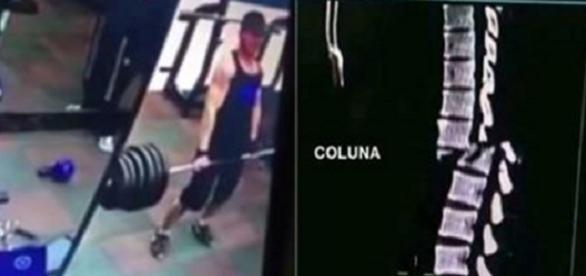 Homem parte a coluna em duas ao carregar barra de pesos na academia.