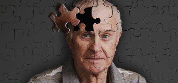 Un million d'Alzheimer en France aujourd'hui, deux millions dans 20 ans.