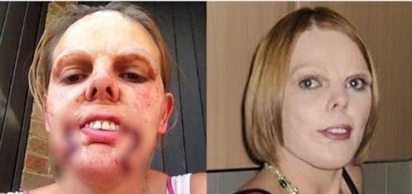 Mulher fica com rosto deformado após erro médico em operação.