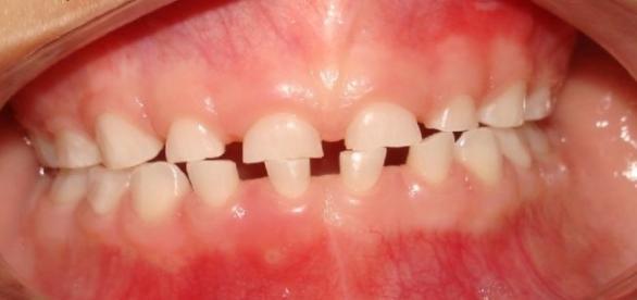Efeitos do bruxismo na dentição infantil (https://goo.gl/images/Ja07nl)