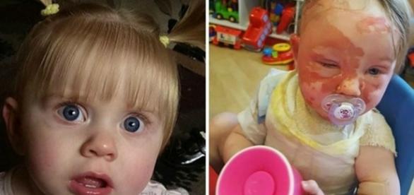 Fotos de Libbie Patterson, antes e depois do acidente.