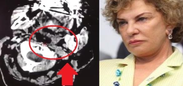Tomografia de mulher de Lula é revelada - Google
