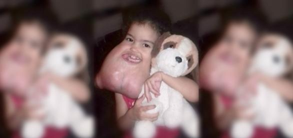 Melyssa em foto antes da cirurgia que salvou sua vida