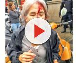 Mujer herida por las fuerzas policiales de Rajoy