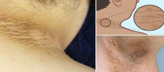 5 maneiras de clarear a pele em casa