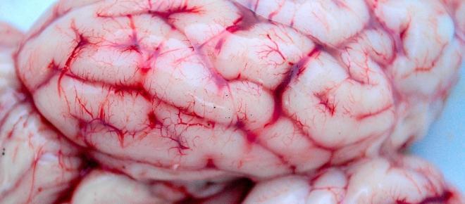 Instituto Allen logra estudiar celulas cerebrales vivas