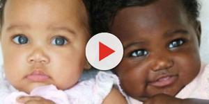 Gêmeas com peles de tons diferentes fazem sucesso no Instagram