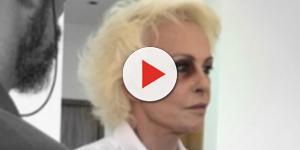 Ana Maria Braga surge com olho roxo
