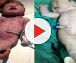 Caso de bebê sereia intriga o mundo