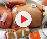 Foto ilustrativa de recém nascido sob cuidados hospitalares