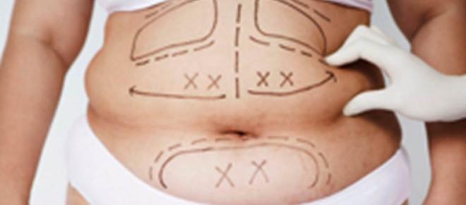 Redução de estômago: Nova técnica para tratamento e cura do diabetes