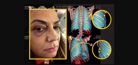 Luiza Brunet e a agressão - Imagem/Google