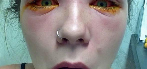 Uma menina de 16 anos quase fica cega depois de tingir as sobrancelhas
