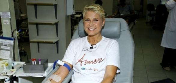 Xuxa Meneghel reduziu as suas próteses mamárias