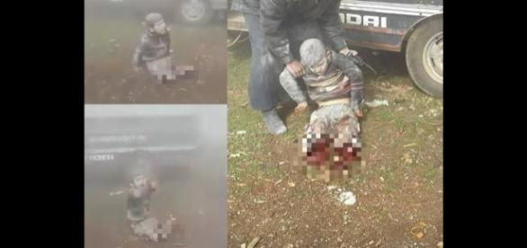 O pequeno Abdulbasit Taan Al-Satouf perdeu as pernas após bombardeio (Crédito: Twitter/dalatrm)