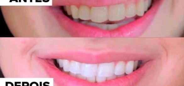 Mais de 1000 ideias sobre Clarear Dentes no Pinterest | Vinagre de ... - pinterest.com