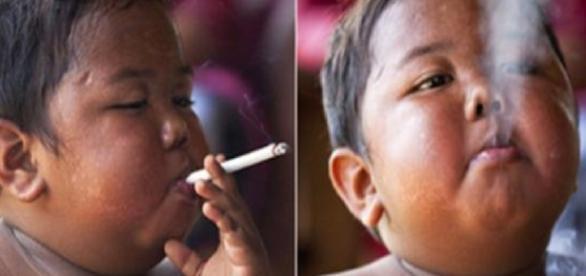 Garoto que fumava 40 cigarros por dia