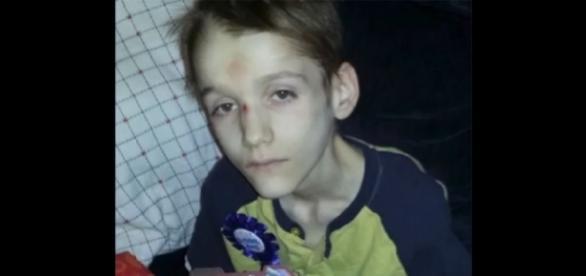 Adolescente de 15 anos pesava apenas 16 kg quando foi encontrado