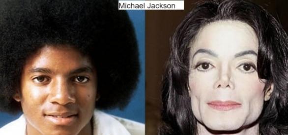 Antes e depois de artistas famosos que fizeram plásticas no rosto e se deram mal